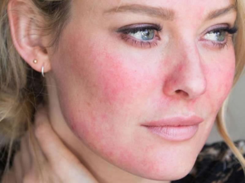 cosméticos contra la rosácea